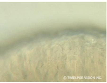 鼻粘膜の繊毛